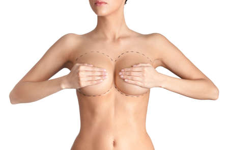 naked female: Outlined parts of breast plastic correction, isolated, white background Stock Photo