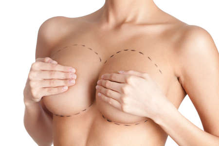 breasts girl: breast correction. Plastic surgery, isolated, white background Stock Photo