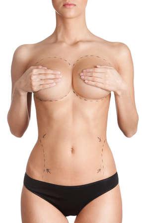 breast beauty: Plastic correction, isolated, white background Stock Photo