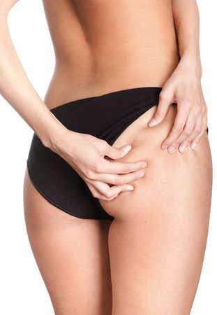 Cellulite, isolated, white background photo