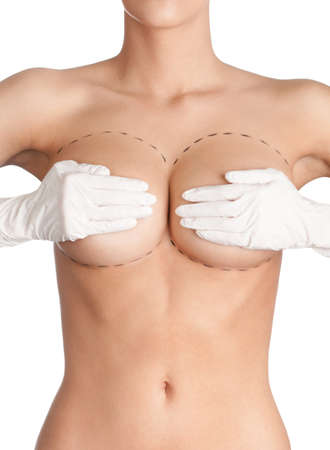 young breast: Outlined parts of breast which need plastic correction, isolated, white background
