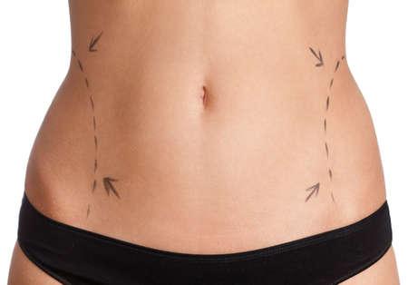 Liposuction, isolated, white background photo