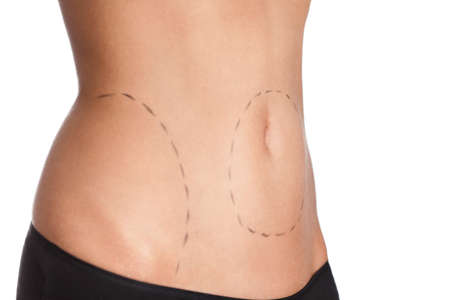 Belly plastic correction, isolated, white background, side view photo