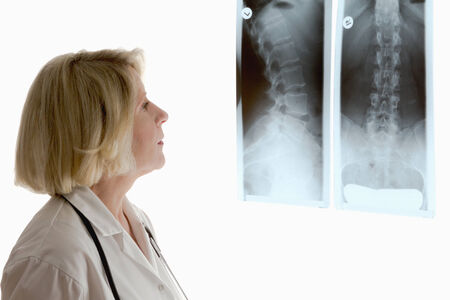ortopedia: Mujer médico en busca de dos radiografías diferentes de la columna vertebral del paciente de sexo femenino, aislado, copyspace