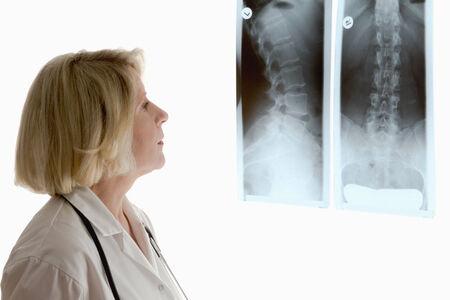 Vrouwelijke arts te kijken naar twee verschillende x-stralen van de wervelkolom van vrouwelijke patiënt, geïsoleerde, copyspace