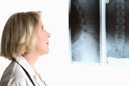 practioner: Blond physician with two spine x-rays of 42 years old woman, isolated on white