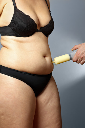 rotund: Body of a middle aged rotund woman with cellulite in underwear with a male hand holding a syringe with fat sucked out of her tummy, liposuction
