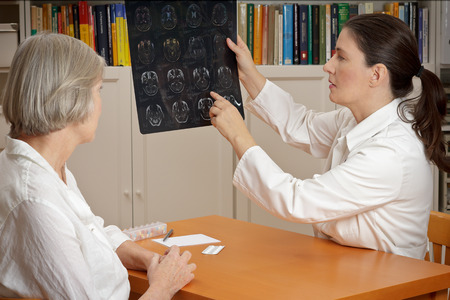 2 women in a  surgery: middle aged doctor in lab coat showing her senior patient magnetic resonance images of her head Standard-Bild