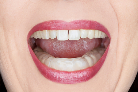 Closeup of an open womans mouth with plastic teeth guard to stop wear due to grinding at night, caused by excessive tension