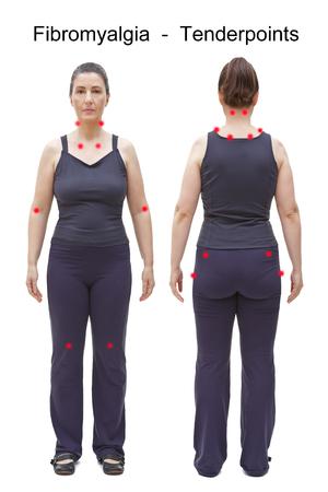 De 18 gevoelige punten van fibromyalgie aangegeven door rode vlekken op het lichaam van een vrouw, achter- en vooraanzicht