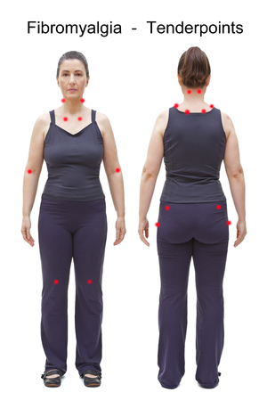 Los 18 puntos sensibles de la fibromialgia indicados por manchas rojas en el cuerpo de una mujer, vista posterior y frontal Foto de archivo
