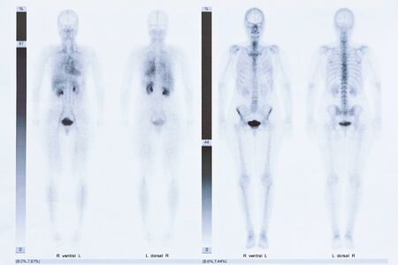 Bone scintigraphy or scintigram of the whole body of a 50 year old woman, showing arthrosis at the thoracic spine