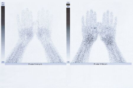 Bone scintigraphy or scintigram of the hands of a 50 year old woman, showing degenerative joint disease