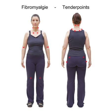 The 18 tender or trigger points of fibromyalgie / fibromyalgia indicated by red spots on the body of an woman, german text.