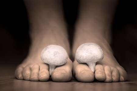 podiatry: Close view of a white mushrooms between the toes feet imitating toes fungus