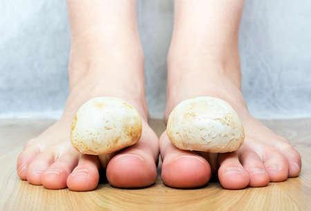hongo: Cerrar vista de un setas blancas entre el hongo dedos de los pies pies pies imitando Foto de archivo