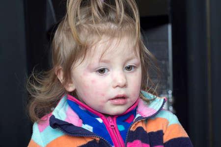 Portret van een klein meisje met een uitslag op zijn gezicht