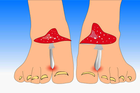 chiropody: Close view of a Amanita mushrooms between the toes feet imitating toes fungus Illustration