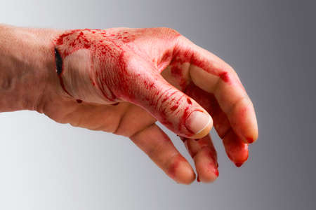 Bloody mans hand with a wound in a gradient background Stock Photo