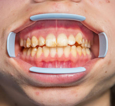 Dental fluorosis (also termed mottled enamel) is hypomineralization of tooth enamel caused by ingestion of excessive fluoride during enamel formation.  Metabolism dysfunction, unhealthy skin, underdeveloped girl's lower jaw Banque d'images