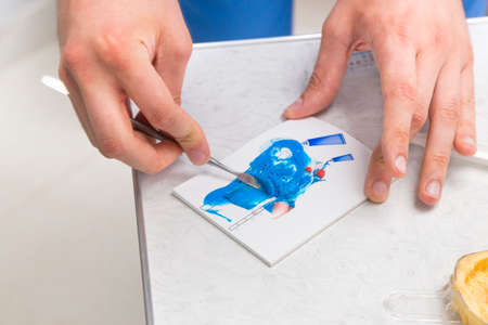 prothesis: Dentists hands mixing  blue silicone impression material on a special mixing pad in a dental clinic Stock Photo