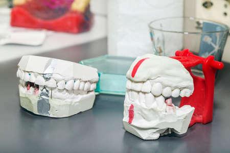 prothetic: Technical shots of model on a dental prothetic laboratory Stock Photo