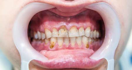 molares: La fluorosis dental (también denominado esmalte moteado) es hipomineralización del esmalte de los dientes causada por la ingestión excesiva de flúor durante la formación del esmalte. disfunción del metabolismo, la piel poco saludable, la mandíbula inferior del chica subdesarrollada