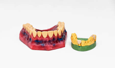 Technical shots of models on a dental prothetic laboratory  Stock Photo