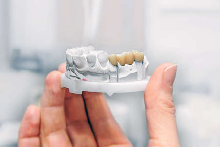 Technical shots of model on a dental prothetic laboratory.Dentist hand with plaster model and ceramic dentures