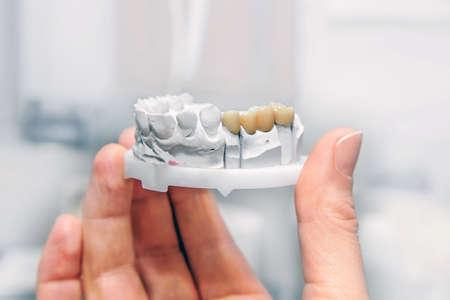 Technische opnamen van model op een tandprothetisch laboratorium. Handtand met gipsmodel en keramisch kunstgebit