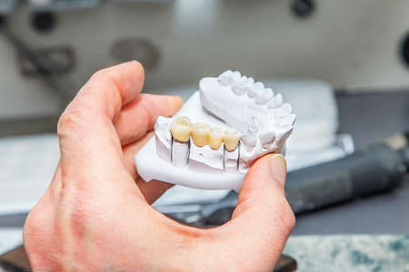 prothetic: Technical shots of model on a dental prothetic laboratory.Dentist hand with plaster model and ceramic dentures