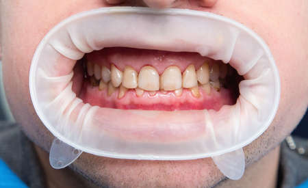 Dental fluorosis (also termed mottled enamel) is hypomineralization of tooth enamel caused by ingestion of excessive fluoride during enamel formation.  Metabolism dysfunction, unhealthy skin, underdeveloped girls lower jaw