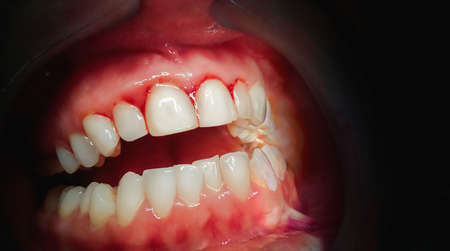 Mouth with bleeding gums on a dark background. Close up. Archivio Fotografico