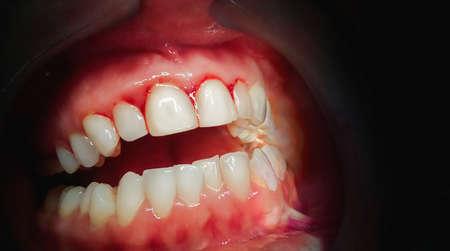 Usta z krwawiącymi dziąsłami na ciemnym tle. Ścieśniać. Zdjęcie Seryjne