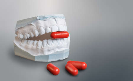 Gypsum teeth model holding   a red medicine capsule. Three red capsules in front of it. On a gray gradient background