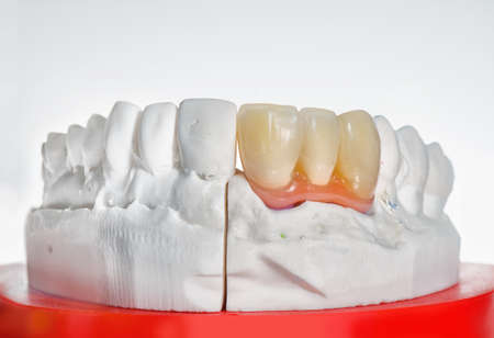 Technical shots of tooth prosthesis and model on a dental prothetic laboratory. On a white bacjground. Close up.