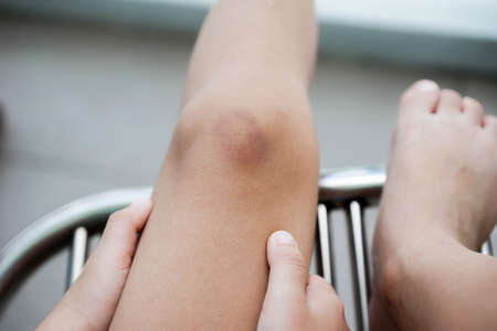 A bruise on Children Knee , Kid get hurt from fall Injuries , Medical and Healthcare Concept
