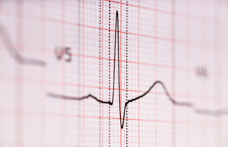 Closeup view of ECG graph  Electrocardiograph photo