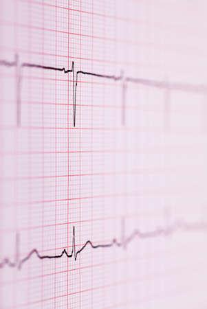Closeup view of ECG graph  Electrocardiograph Stock Photo - 16302482