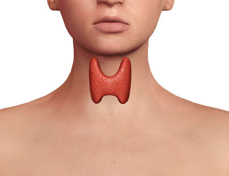 Thyroid gland exposed on the neck of a woman with endocrine disruption, inflammation and swelling. Endocrine system disease. 3D illustration Stock Photo