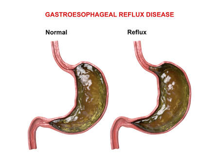 Gastroesophageal Reflux Disease - failure of the digestive mechanism (sphincter) that causes passage of gastric acid into the esophagus. 3D illustration Stock Photo