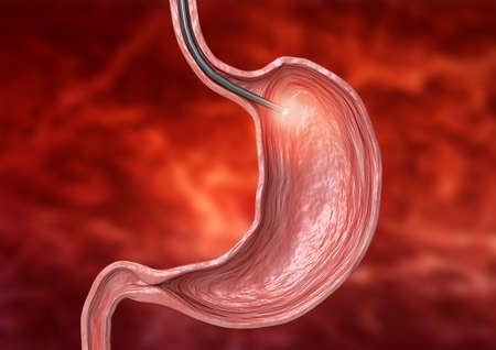 digestive endoscopy - examination using flexible tube with camera and light at its end for diagnosis of diseases of the digestive system. 3D illustration Stock Photo