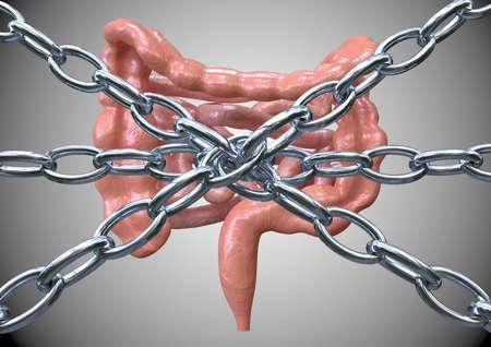 concetto di stitichezza, correnti che trattengono l'intestino, difficoltà a espellere le feci. Rendering 3D