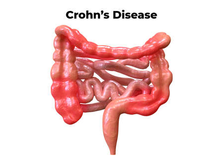 Crohn's disease is a syndrome that affects the digestive system. Its symptoms are abdominal pain associated with diarrhea, fever, weight loss and weakening. 3D rendering
