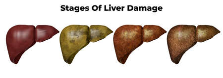 Stages of liver damage. The first symptoms of liver problems are abdominal pain, swollen belly, yellow skin and eyes, dark urine. 3D rendering
