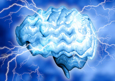 Epilepsy is a chronic brain disease caused by increased electrical activity of neurons. It manifests through involuntary convulsions and momentary loss of consciousness. 3D rendering Banco de Imagens