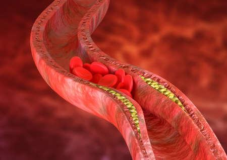 La aterosclerosis es una acumulación de placas de colesterol en las paredes de las arterias, lo que provoca la obstrucción del flujo sanguíneo. Representación 3D