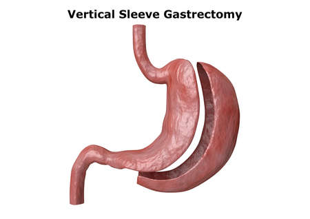 vertical sleeve gastrectomy. Bariatric surgery with reduction of the size of the stomach for weight loss and loss of body weight. 3D rendering