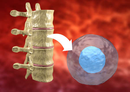 therapy with stem cells taken from the bone marrow to treat diseases of the human body. 3D rendering