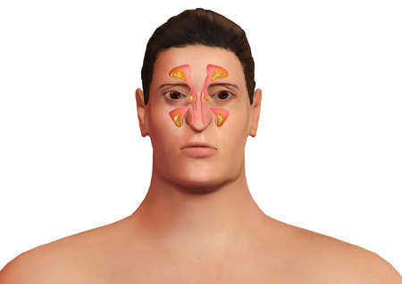 face of man with nasal sinuses inflamed with sinusitis. Allergic sinusitis and body malaise. 3D rendering